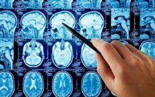 Перечень профессиональных заболеваний в 2020 — формы, факторы, классификация, причины